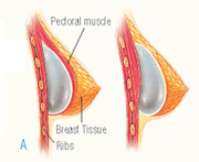 breast_augmentation-4