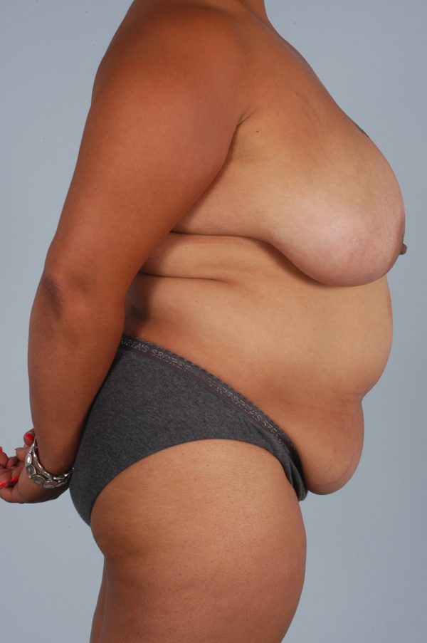 Abdominoplasty (Tummy Tuck) with Breast Reduction/Lift