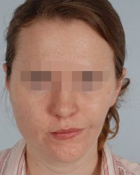 Asymmetry and Facial Reshaping