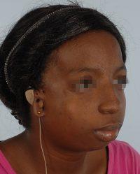 Craniofacial Cleft
